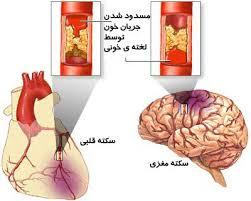 پورتال برنامه ملی درمان سکته حاد قلبی و مغزی